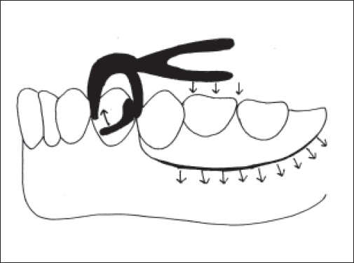 Removable partial dentures behaving like an extraction