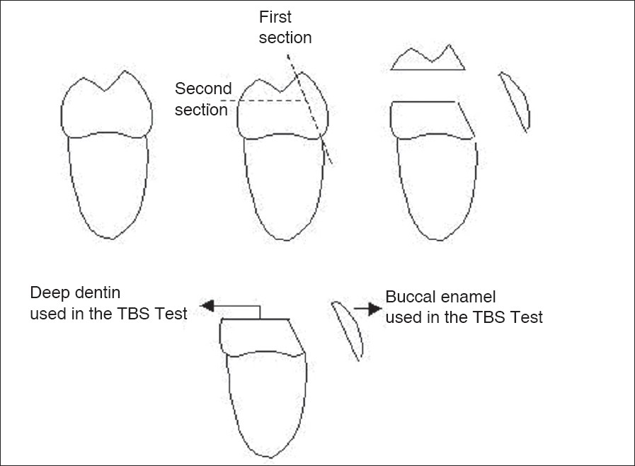 Figure 1: Section of the buccal enamel and deep dentine