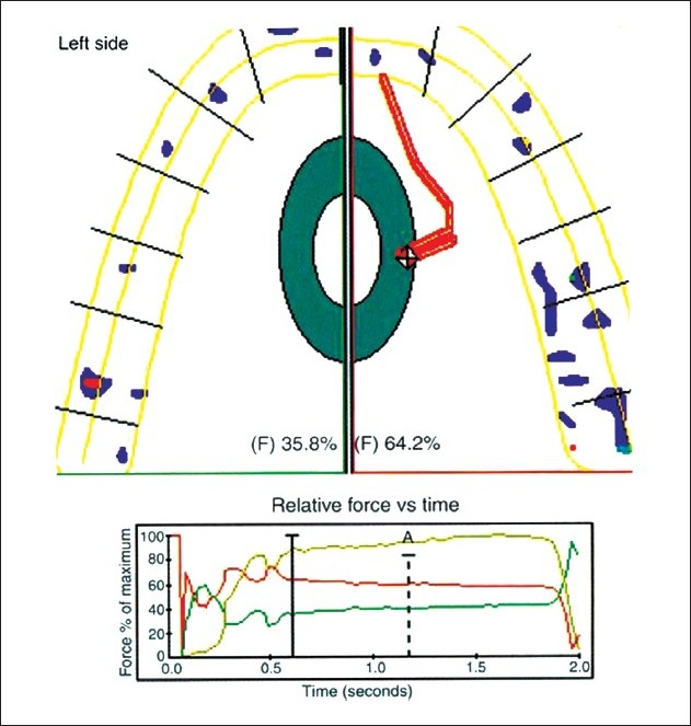 Occlusion indicators: A review