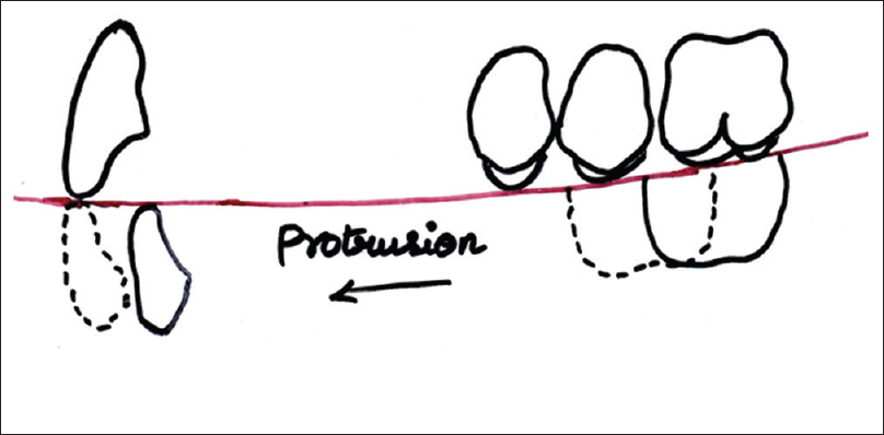 Figure 9: Lingualized balanced occlusion: Protrusion
