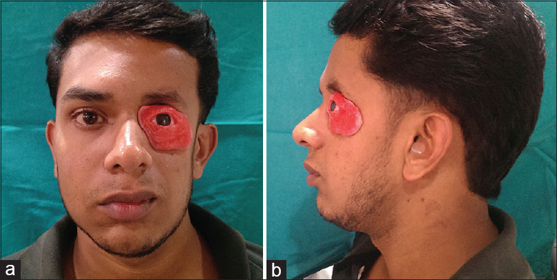 Prosthetic rehabilitation of an orbital defect for a patient
