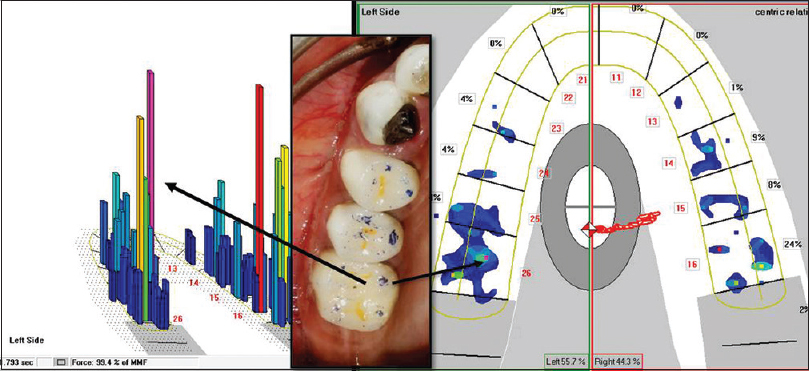 Figure 3: Correlating occlusal contacts marked with articulating paper with Tekscan force concentration zones