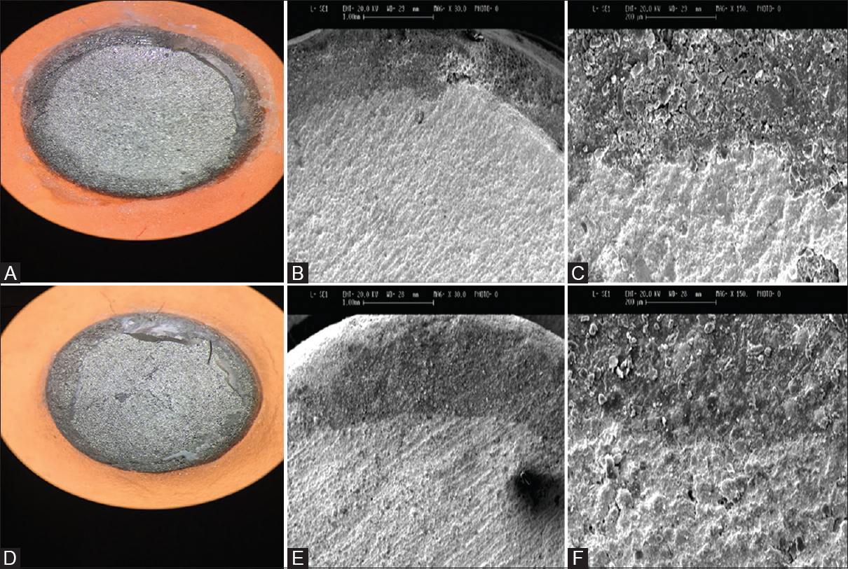 Figure 4: Adhesive failure pattern of amalgam core at × 8, ×30, and ×150 magnifications by stereomicroscopy and scanning electron microscopy (A, B, and C for show the luting cement + amalgam cores subgroup and D, E, and F for primer + amalgam cores subgroup)