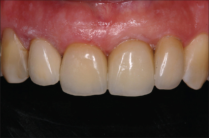 Figure 8: Final appearance of anterior teeth immediately after cementation